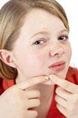 Acne Laser Treatment Program