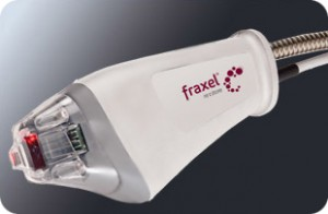 Fraxel Laser Treatment For Acne Scars